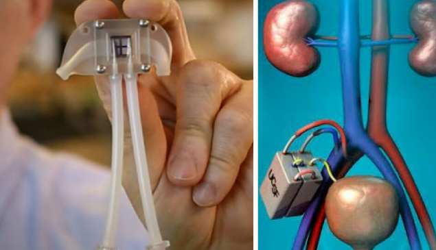 Conheça o rim biônico para dizer adeus a maquina de hemodiálise