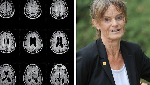 Cientista está a um passo da cura da esclerose múltipla